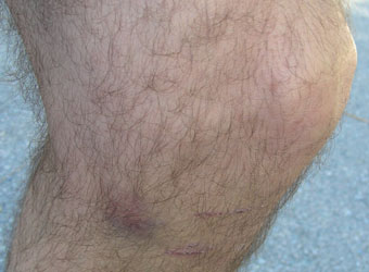 bruised knee — not from the race